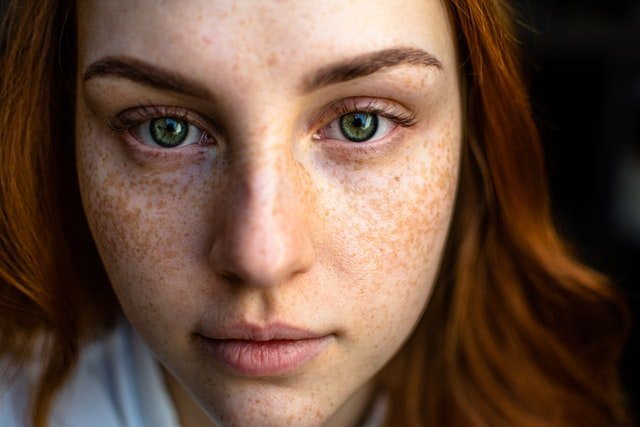 Freckles are natural pigmentation